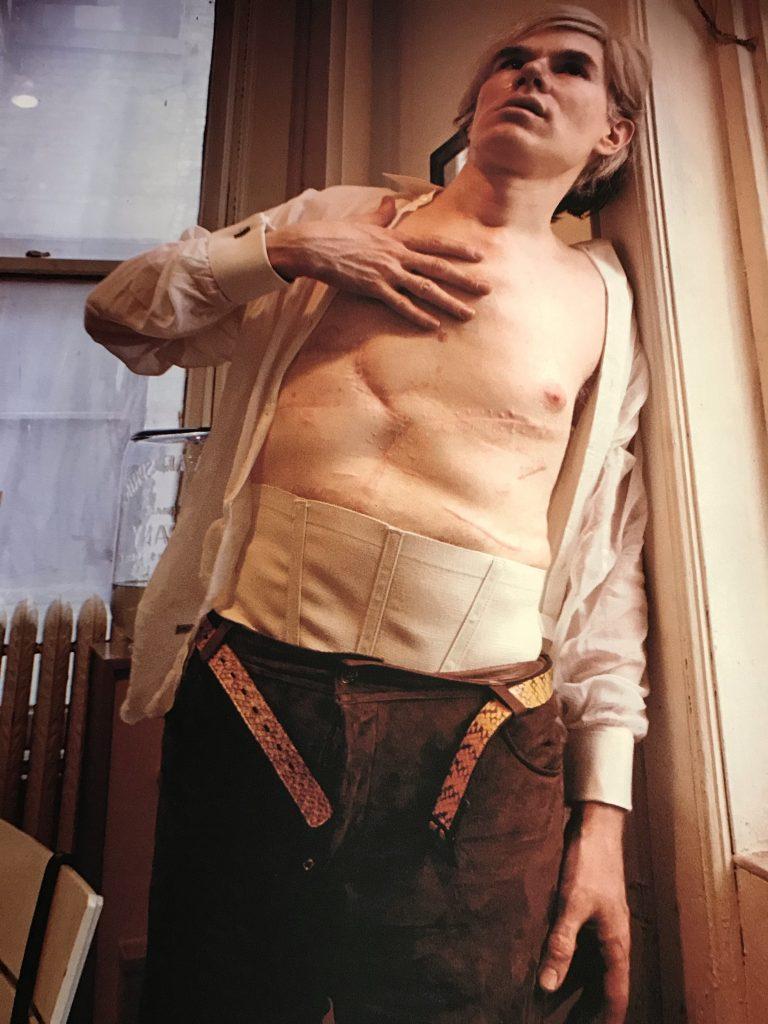 Andy Warhol toont zijn verwondingen na de aanslag